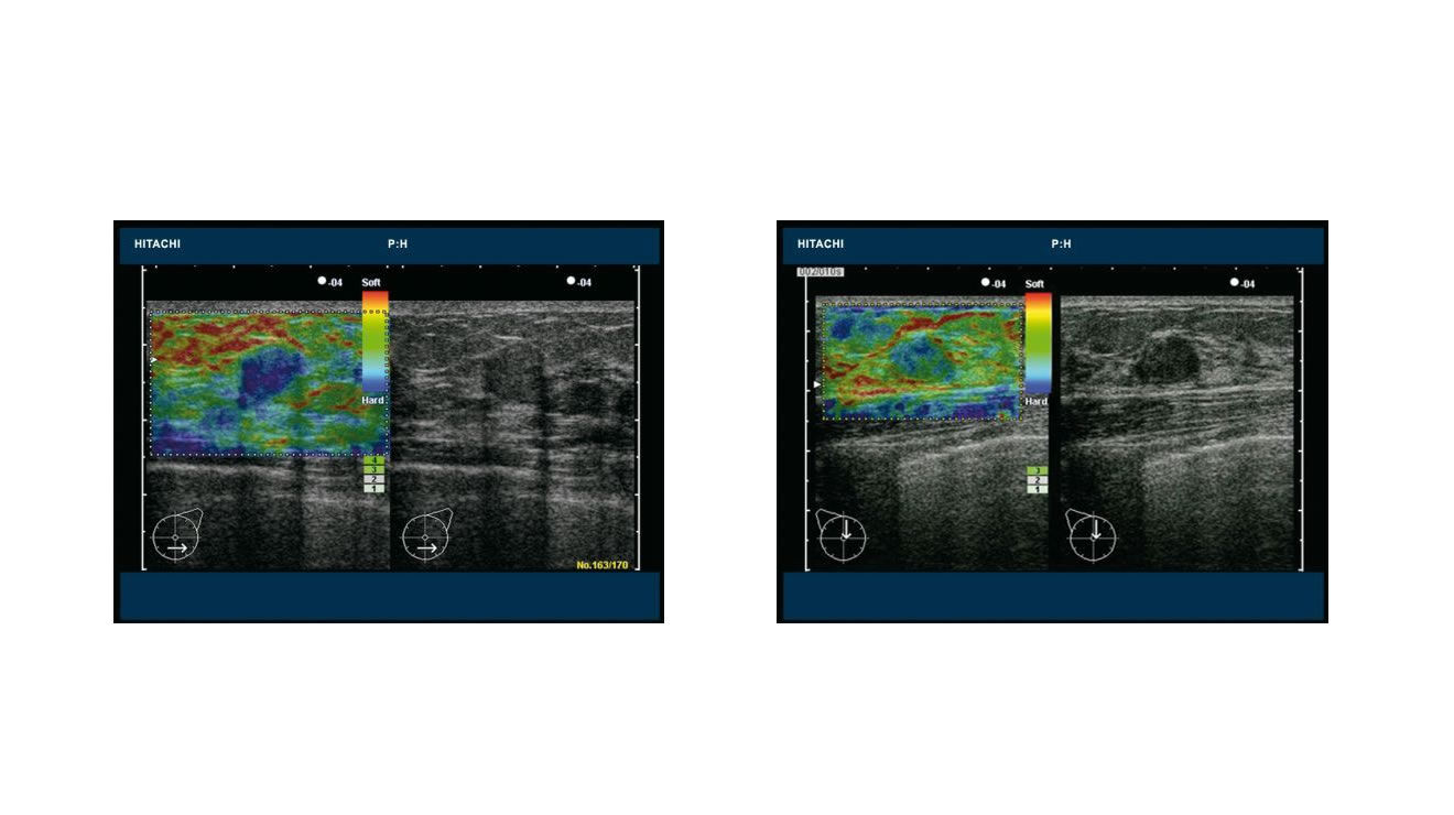 RTE - Real-time Tissue Elastography
